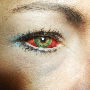 Makeup disguises a fractured eye, as she prepares to board a train home. After a night of heavy drinking with friends, she came to consciousness in a hotel room with her ex-boyfriend choking her and kicking her in the groin. She moved to Williston with her boyfriend less than three weeks prior to seek work.